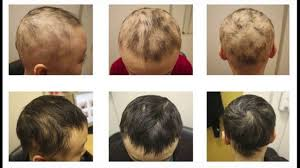 lupus leads to hair loss treatment options youtube