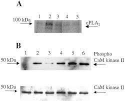 ca2 calmodulin dependent protein kinase ii and cytosolic