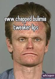 chapped bulimia tweaker lips