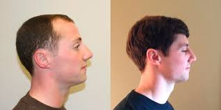 hair plugs for men hair plugs dr brett bolton s best hair transplant blog florida
