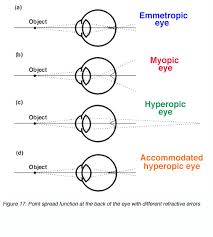 The Anatomy And Physiology Of The Eye Visual Acuity By Michael Kalloniatis And Charles Luu U2013 Webvision