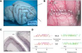 Cortical Blindness May Result From The Destruction Of Cross Modal Plasticity In Higher Order Auditory Cortex Of