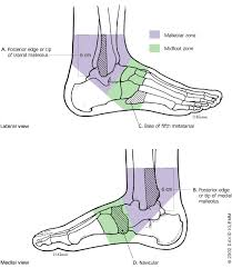 High Ankle Sprain Anatomy Foot Fractures That Are Frequently Misdiagnosed As Ankle Sprains