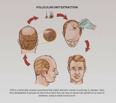 hair transplant calculator hair transplant cost in indore bhopal jabalpur