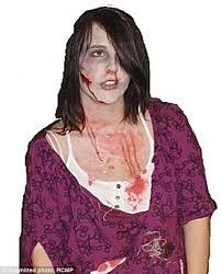 Fake Blood Halloween Costume Taylor Van Diest Dressed Zombie Fake Blood