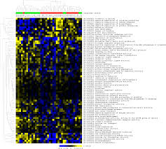 analysis of gene expression using gene sets discriminates cancer