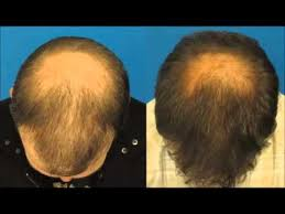 download hair loss ebook how to stop hair loss and regrow it the natural way how much zinc