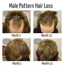 Biotin African American Hair Growth Hair Growth For Men Laura Williams