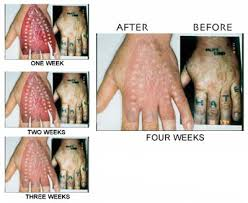 tattoo removal cream price in india tattoo removal care