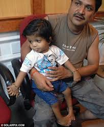 akshat saxena indian boy born with 34 fingers and toes breaks