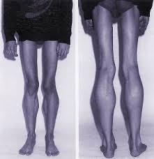 muskelschwäche beine fallorientiert lernen muskelerkrankungen klinik via medici