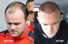 declan donnelly hair transplant wayne rooney celebrity hair transplant before and after