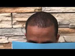 hair transplant america fue before after black african american man hair transplant hair