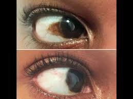 how to get rid of a brown spot discolouration on the whites of the