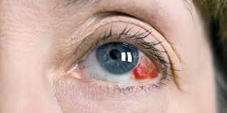 flashing lights in eye stroke 5 scary symptoms that are usually harmless huffpost