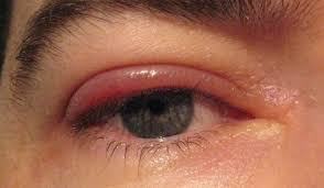 a step by step guide of warm compress for eye new health advisor