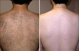 vectus laser hair removal reviews laser hair removal in dallas and plano tx