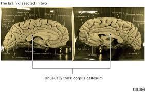 Most Comfortable Bra In The World The Strange Afterlife Of Einstein U0027s Brain Bbc News
