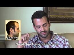 transplant hair second round draft testimonial hair transplants videos reviews updates