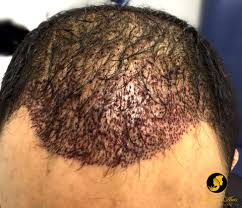neograft recovery timeline a patient s neograft hair restoration journey with dr monte slater