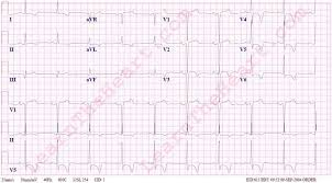 strain pattern ecg meaning left ventricular hypertrophy lvh with repolarization abnormalities