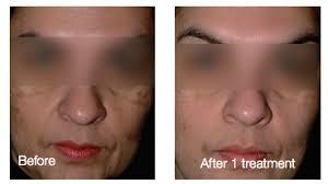 tattoo removal ldi laser u0026 dermatology institute of california