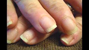 ridged nails symptoms and causes youtube