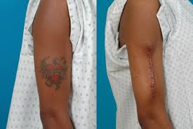 surgical tattoo removal kaplan cosmetic surgery