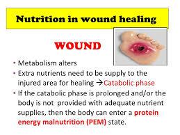 diet and tissue healing