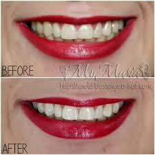 crest 3d white whitestrips with light teeth whitening kit review teeth whitening with crest 3d white whitestrips basta igat