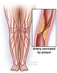 Foot Vascular Anatomy Peripheral Artery Disease Pad Diagnosis U0026 Treatment Austin Tx