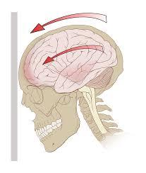 concussion wikipedia