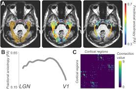Blind Sighted Synonym The Visual White Matter The Application Of Diffusion Mri And