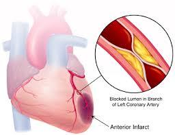 نميز اعراض النوبة القلبية غيرها