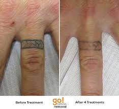 787 best tattoo removal in progress images on pinterest