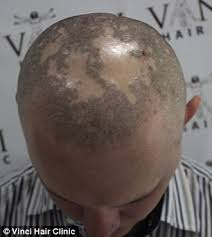 bald turn to hair tattoos to creates the illusion of hair