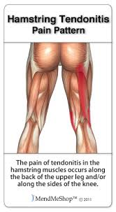Picture Of Human Knee Muscles Hamstring Origin Tendinopathy Physiopedia