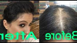 women hair cut to cover bald spot on top of head hairstyles to hide bald spots fade haircut