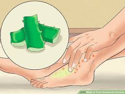 light treatment for eczema how to treat dyshidrotic eczema 12 steps with pictures