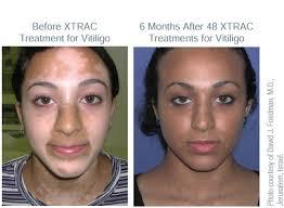 uvb light therapy for vitiligo xtrac laser therapy for psoriasis and vitiligo gardner dermatology