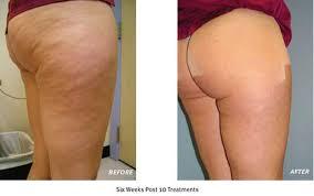 red light therapy cellulite velashape anti cellulite treatment duxbury massachusetts