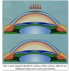 What Are The Chances Of Going Blind From Lasik About Prk New Orleans Lasik Eye Surgery U0026 Laser Vision Correction