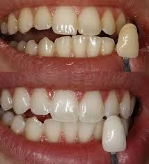 teeth whitening u2013 dentist rancho cucamonga