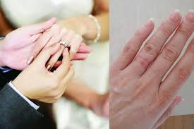 wedding ring dermatitis everything you must about engagement or wedding ring allergy