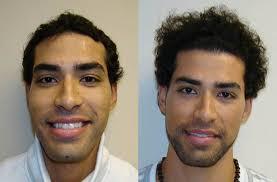 hairline restoration for black men national hair restoration clinic advises hair loss patients do