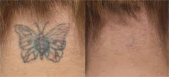 tattoo laser removal miami