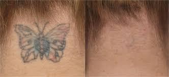 100 laser tattoo removal success kitchener laser tattoo