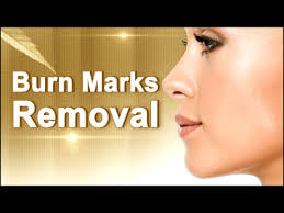 Treatment For Rug Burn How To Remove Burn Marks Naturally At Home Natural Home Remedy