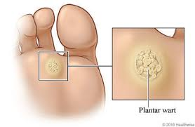 How To Remove Planters Warts by Warts And Plantar Warts Topic Overview