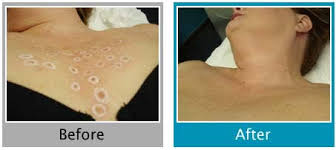 permanent hair removal vienna virginia before and after permanent